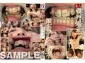 素人歯列矯正 顔面デストロイ 矯正中のリョウコちゃん [GRAV-068]